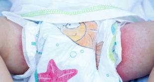 Eruzione cutanea da pannolino: cause, sintomi e trattamento